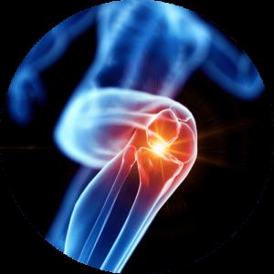 Knee Pain (1)